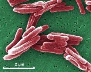 mycobacterium tuberculosis 030
